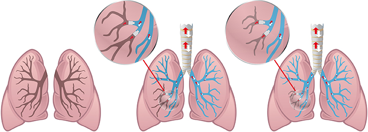 Endobronchialventile - Ventile bei COPD