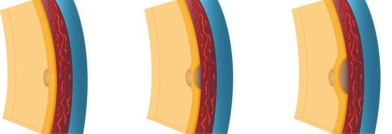 Makuladegeneration - Reparatur- und Schwellungsprozesse zwischen der Netzhaut und Lederhaut